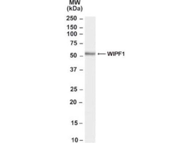 Western Blotting (WB) image for anti-WIPF1 antibody (WAS/WASL Interacting Protein Family, Member 1) (C-Term) (ABIN261101)