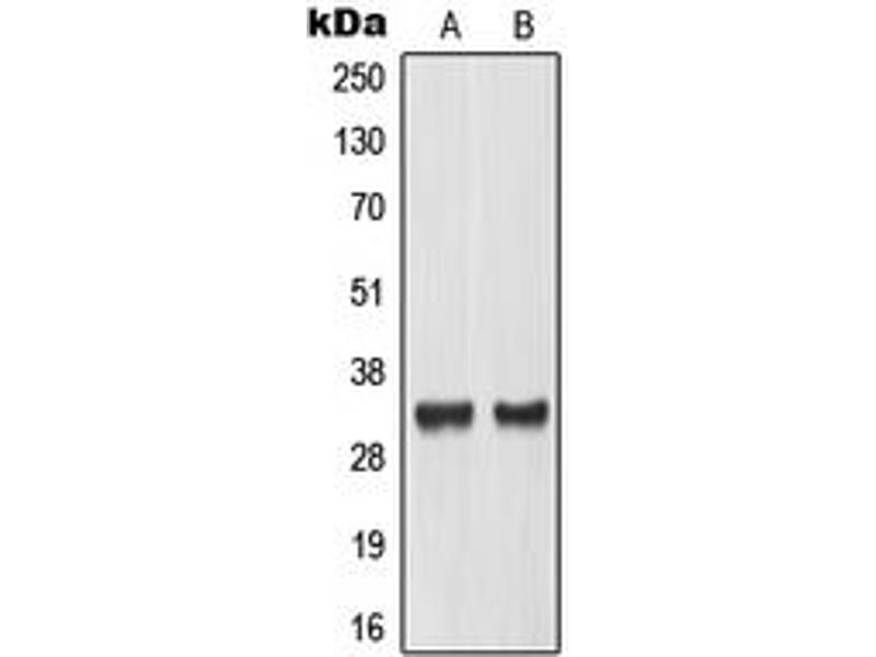 Image no. 3 for anti-MAX-Like Protein X (MLX) (Center) antibody (ABIN2707153)