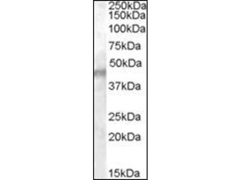 Western Blotting (WB) image for anti-Potassium Inwardly-Rectifying Channel, Subfamily J, Member 11 (KCNJ11) (Internal Region) antibody (ABIN614945)
