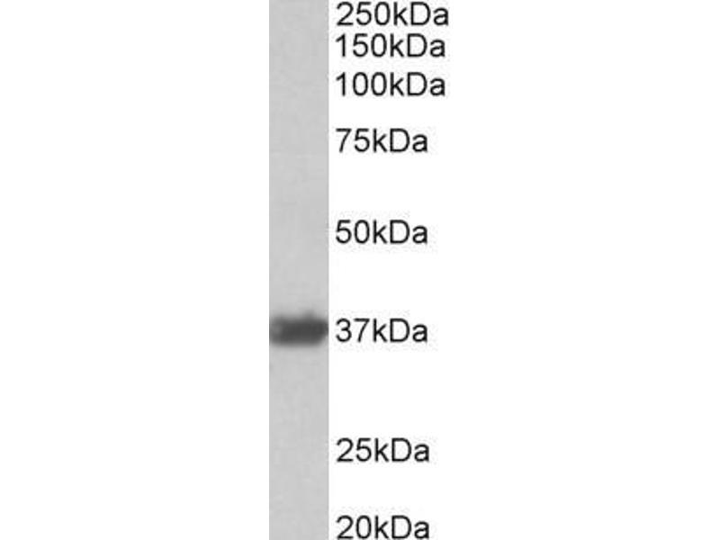 Image no. 2 for anti-GAPDH antibody (Glyceraldehyde-3-Phosphate Dehydrogenase) (Internal Region) (ABIN185543)