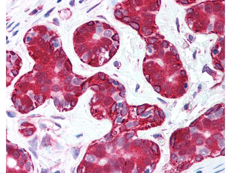 Immunohistochemistry (IHC) image for anti-V-Akt Murine Thymoma Viral Oncogene Homolog 2 (AKT2) (C-Term) antibody (ABIN213654)