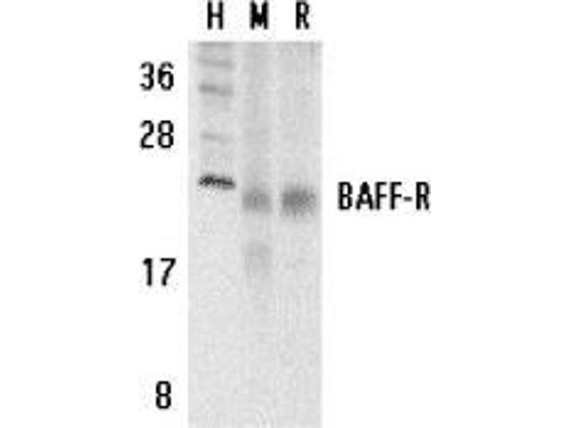 Western Blotting (WB) image for anti-TNFRSF13C antibody (Tumor Necrosis Factor Receptor Superfamily, Member 13C) (C-Term) (ABIN499403)