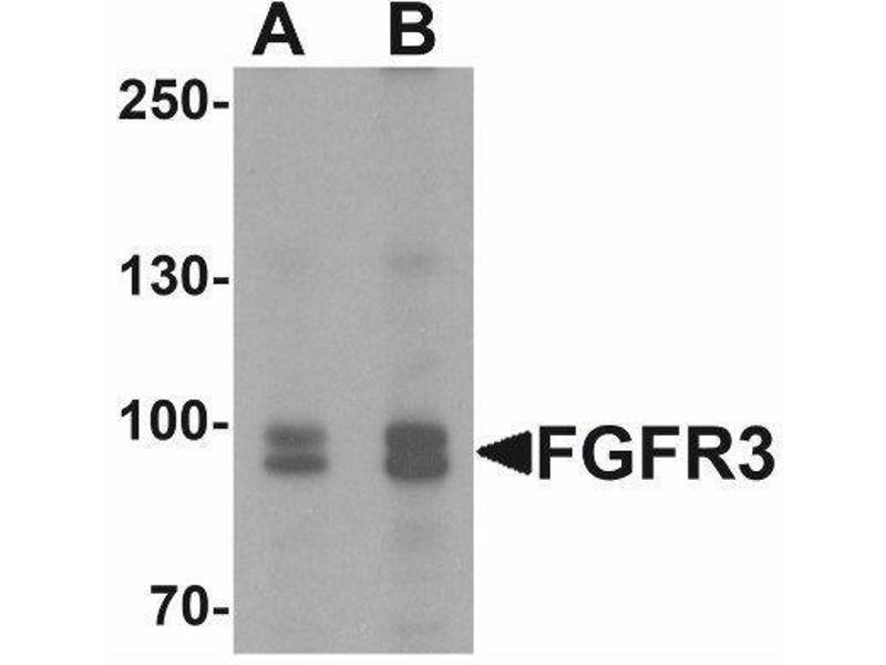 Western Blotting (WB) image for anti-Fibroblast Growth Factor Receptor 3 (FGFR3) (C-Term) antibody (ABIN4311553)