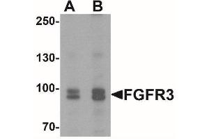 Western Blotting (WB) image for anti-FGFR3 antibody (Fibroblast Growth Factor Receptor 3) (C-Term) (ABIN4311553)