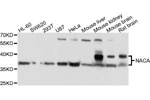 Image no. 1 for anti-Nascent Polypeptide Associated Complex alpha 1 (NACa1) antibody (ABIN6566781)