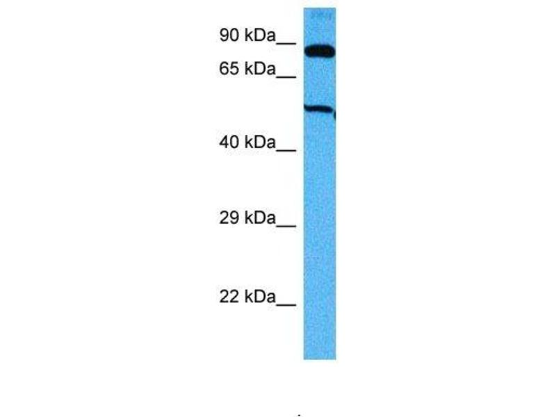 Western Blotting (WB) image for anti-Suppressor of Fused Homolog (Drosophila) (SUFUH) (Middle Region) antibody (ABIN2780999)