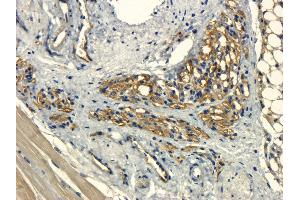Immunohistochemistry (Paraffin-embedded Sections) (IHC (p)) image for anti-Kinase insert Domain Receptor (A Type III Receptor tyrosine Kinase) (KDR) antibody (ABIN2506667)