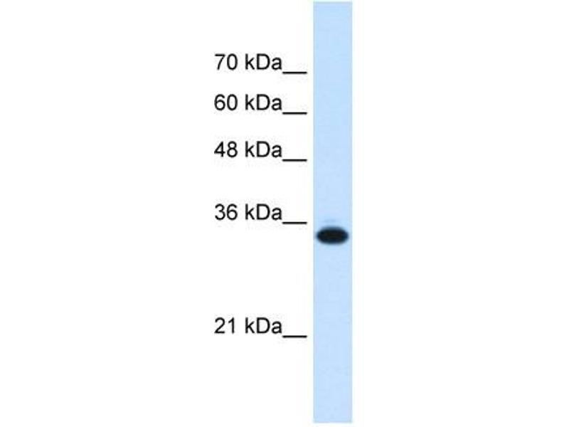 Image no. 2 for anti-Solute Carrier Family 25, Member 38 (SLC25A38) (Middle Region) antibody (ABIN635042)