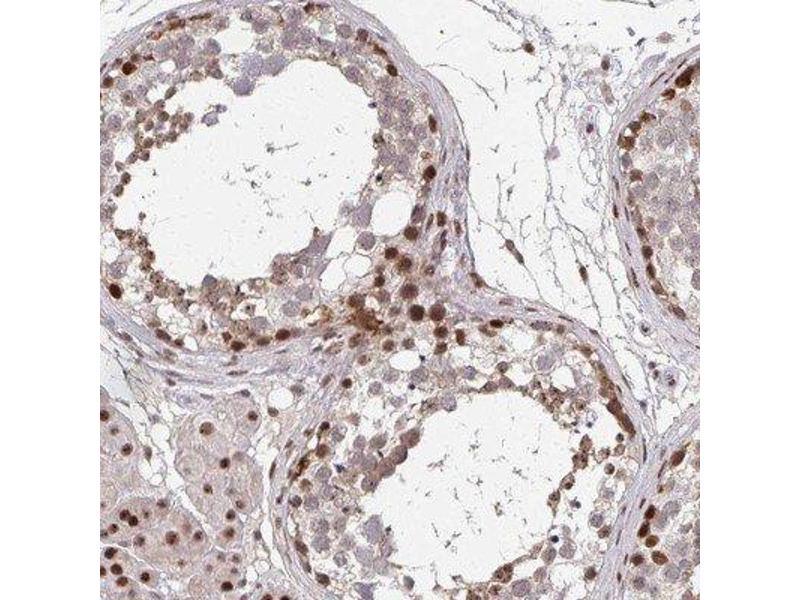 Immunohistochemistry (IHC) image for anti-Nanos Homolog 3 (NANOS3) antibody (ABIN4337826)