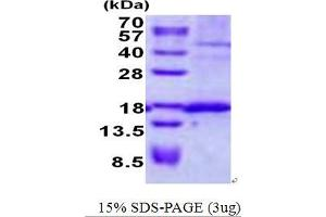 Image no. 1 for Signal Sequence Receptor, delta (SSR4) protein (His tag) (ABIN1098708)