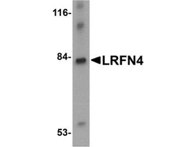 Image no. 1 for anti-Leucine Rich Repeat and Fibronectin Type III Domain Containing 4 (LRFN4) (C-Term) antibody (ABIN1030491)
