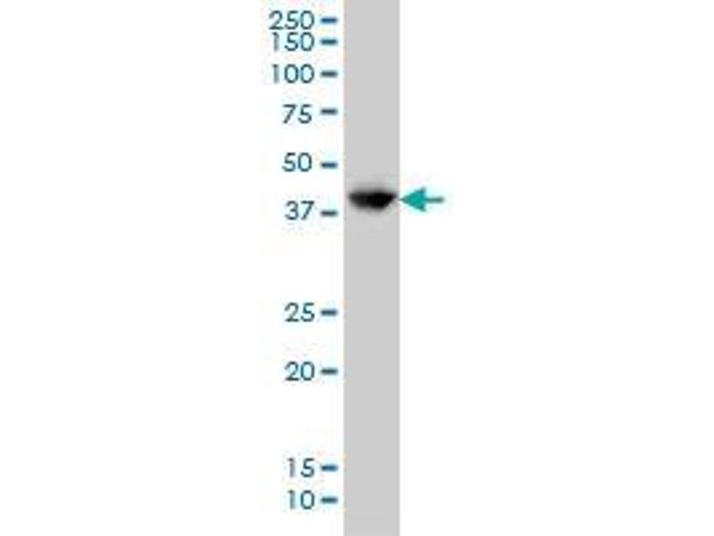 Western Blotting (WB) image for anti-Glutamate-Ammonia Ligase (GLUL) (AA 1-374) antibody (ABIN393284)