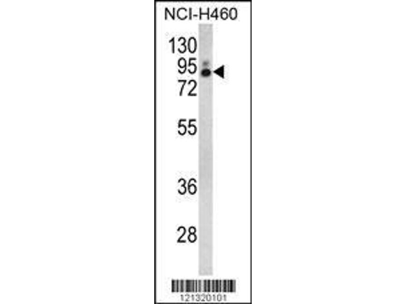 Western Blotting (WB) image for anti-phospholipase A2, Group IVA (Cytosolic, Calcium-Dependent) (PLA2G4A) (AA 513-541), (Center) antibody (ABIN652449)