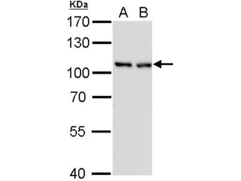 Western Blotting (WB) image for anti-CSE1L/CAS/Exportin-2 (Center) antibody (ABIN4265151)