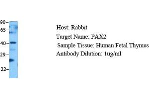 Image no. 1 for anti-Paired Box Gene 2a (PAX2A) (Middle Region) antibody (ABIN2777232)