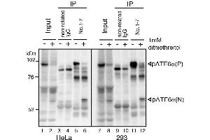 Image no. 2 for anti-Activating Transcription Factor 6 (ATF6) (N-Term) antibody (ABIN2451924)