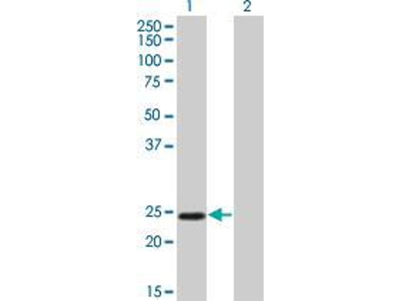 Western Blotting (WB) image for anti-Twist Homolog 1 (Drosophila) (TWIST1) (AA 100-203) antibody (ABIN393971)