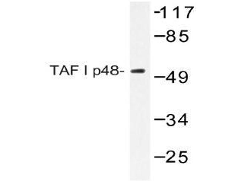 Western Blotting (WB) image for anti-SET Nuclear Oncogene (SET) antibody (ABIN498343)