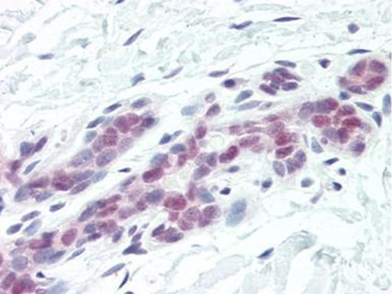 Immunohistochemistry (Paraffin-embedded Sections) (IHC (p)) image for anti-DFFA antibody (DNA Fragmentation Factor, 45kDa, alpha Polypeptide) (AA 2-21) (ABIN615234)