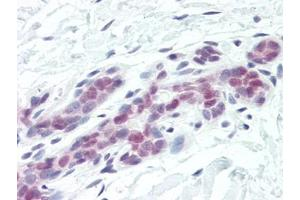 Immunohistochemistry (Paraffin-embedded Sections) (IHC (p)) image for anti-DNA Fragmentation Factor, 45kDa, alpha Polypeptide (DFFA) (AA 2-21) antibody (ABIN615234)