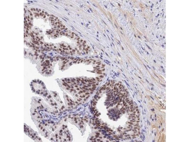 Immunohistochemistry (IHC) image for anti-B-Cell CLL/lymphoma 9 (BCL9) antibody (ABIN4283625)
