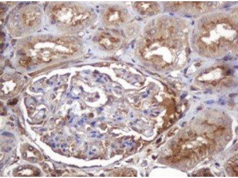Immunohistochemistry (IHC) image for anti-Actin Related Protein 2/3 Complex, Subunit 5, 16kDa (ARPC5) antibody (ABIN4281696)