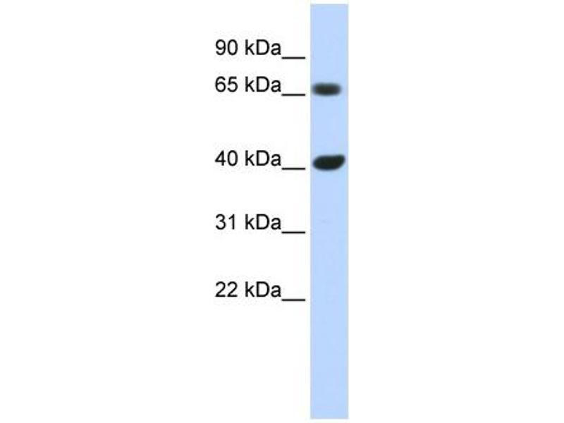 Western Blotting (WB) image for anti-Cyclin D1 (CCND1) (N-Term) antibody (ABIN2777893)
