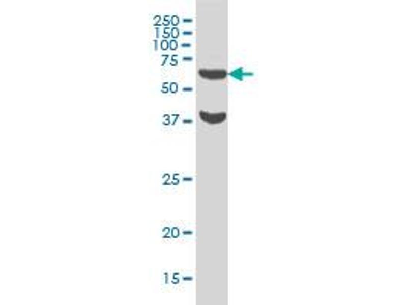 Western Blotting (WB) image for anti-Ribosomal Protein S6 Kinase, 70kDa, Polypeptide 1 (RPS6KB1) (AA 416-525), (partial) antibody (ABIN562722)