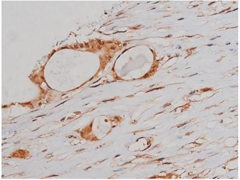 Immunohistochemistry (IHC) image for anti-Microtubule-Associated Protein tau (MAPT) (pSer262) antibody (ABIN6256228)