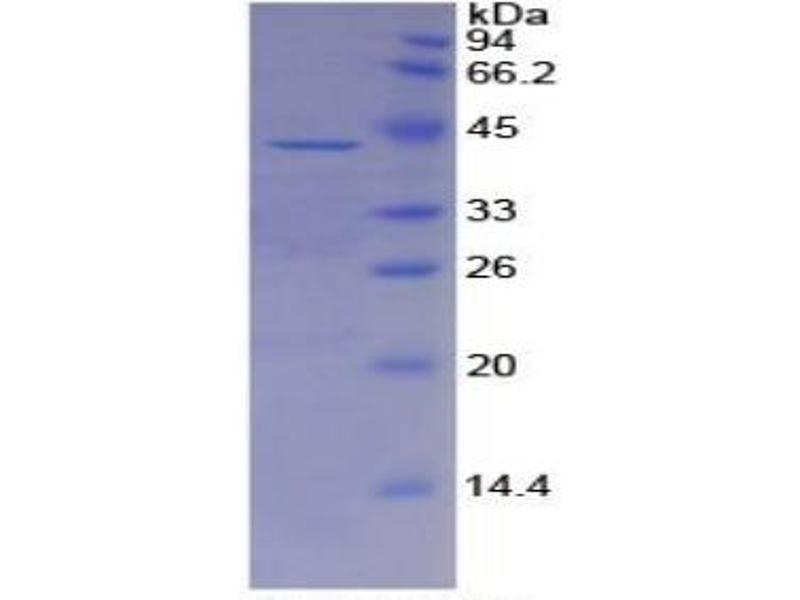 SDS-PAGE (SDS) image for alpha-2-HS-Glycoprotein (AHSG) ELISA Kit (ABIN6730899)