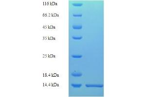 Image no. 1 for Histone H2B Type 2-E (HIST2H2BE) (AA 2-93) protein (His tag) (ABIN5710982)