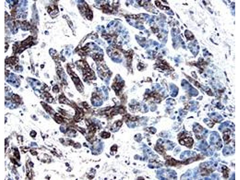 image for anti-PDGFC antibody (Platelet-Derived Growth Factor C) (ABIN958219)