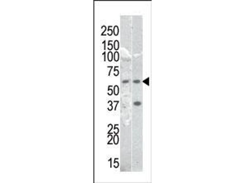 Western Blotting (WB) image for anti-NFkB cRel (pSer536) antibody (ABIN389601)