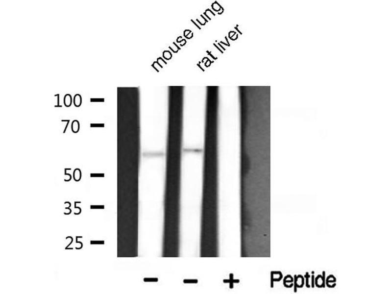 Image no. 1 for anti-V-Akt Murine Thymoma Viral Oncogene Homolog 1 (AKT1) (pThr450) antibody (ABIN6256564)