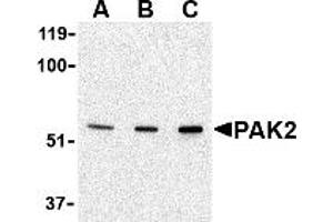 Image no. 1 for anti-P21-Activated Kinase 2 (PAK2) (N-Term) antibody (ABIN1031502)