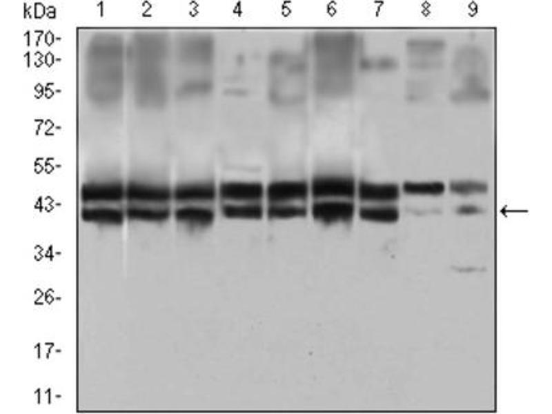 Immunofluorescence (IF) image for anti-Interleukin 2 Receptor, alpha (IL2RA) (AA 34-139) antibody (ABIN1845343)
