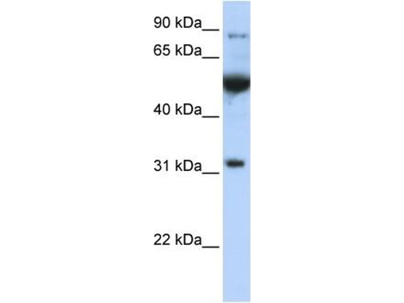 Western Blotting (WB) image for anti-Eukaryotic Translation Initiation Factor 2B, Subunit 1 Alpha, 26kDa (EIF2B1) (C-Term) antibody (ABIN503287)