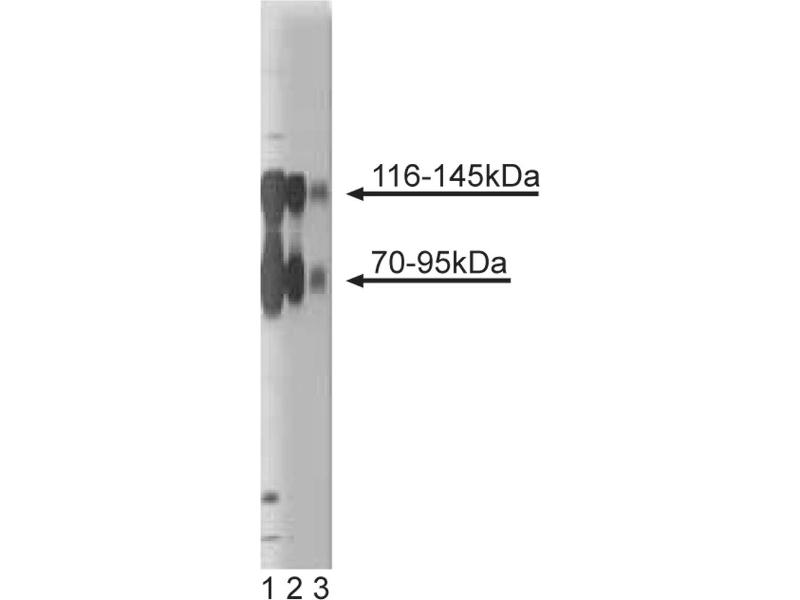Western Blotting (WB) image for anti-TRKB antibody (Neurotrophic Tyrosine Kinase, Receptor, Type 2) (AA 156-322) (ABIN967746)
