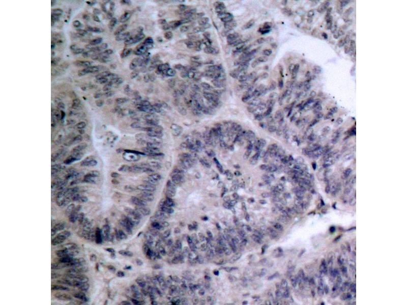 image for anti-CHUK antibody (conserved Helix-Loop-Helix Ubiquitous Kinase) (ABIN265477)