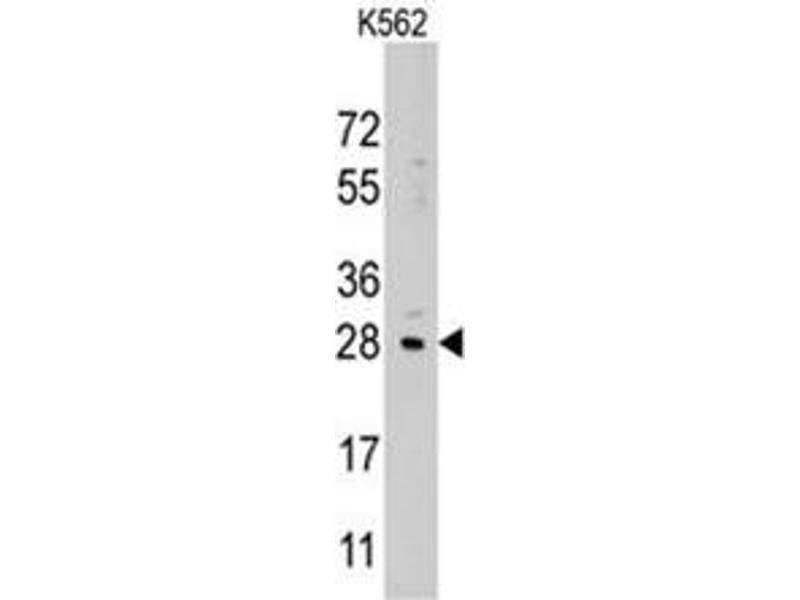 image for anti-LIN28B antibody (Lin-28 Homolog B (C. Elegans)) (Center) (ABIN357013)
