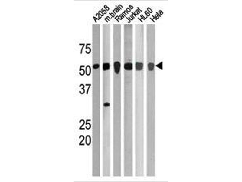 Western Blotting (WB) image for anti-CHEK1 antibody (Checkpoint Kinase 1) (pSer280) (ABIN389542)