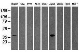 Western Blotting (WB) image for anti-GRAP2 antibody (GRB2-Related Adaptor Protein 2) (ABIN4316111)