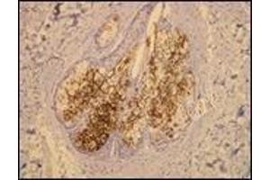 Image no. 3 for anti-Mucin 1, Cell Surface Associated (MUC1) (C-Term) antibody (ABIN870416)