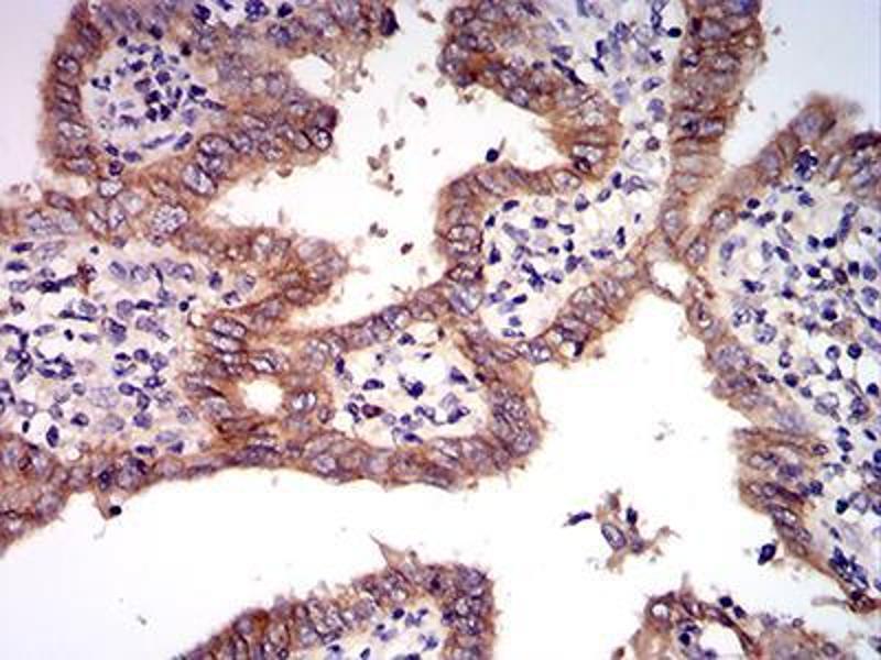 Immunohistochemistry (IHC) image for anti-Met Proto-Oncogene (MET) (AA 743-932) antibody (ABIN5542707)