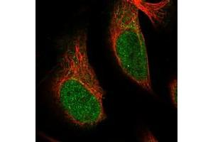 Image no. 2 for anti-Snf2-Related CREBBP Activator Protein (SRCAP) antibody (ABIN5588742)