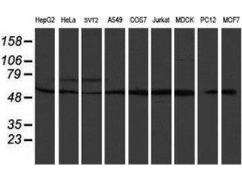 Western Blotting (WB) image for anti-RuvB-Like 2 (E. Coli) (RUVBL2) antibody (ABIN4351488)