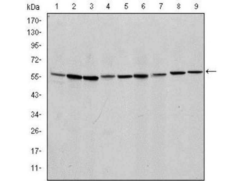 Western Blotting (WB) image for anti-Apoptosis-Inducing Factor, Mitochondrion-Associated, 1 (AIFM1) antibody (ABIN4278820)