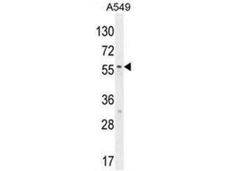 Western Blotting (WB) image for anti-SYNCI (AA 133-163), (N-Term) antibody (ABIN955027)