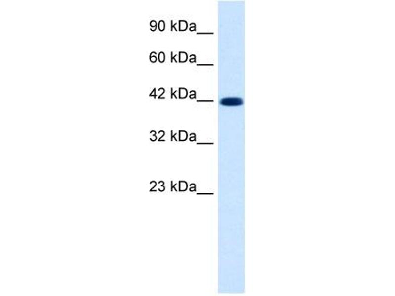 Western Blotting (WB) image for anti-Potassium Voltage-Gated Channel, KQT-Like Subfamily, Member 2 (KCNQ2) (Middle Region) antibody (ABIN183178)