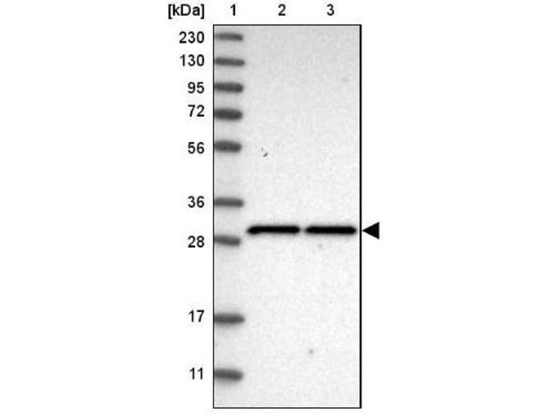 Western Blotting (WB) image for anti-SCO1 Cytochrome C Oxidase Assembly Protein (SCO1) antibody (ABIN4352258)